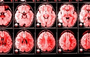 brain-imaging